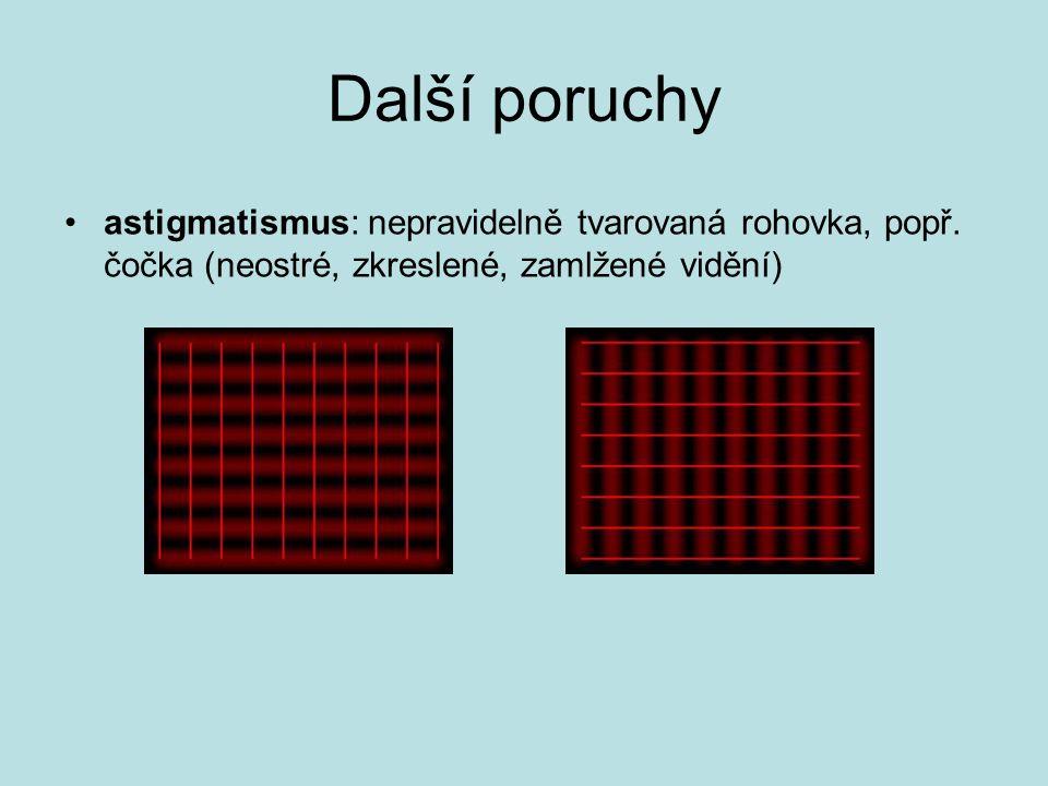 Další poruchy •astigmatismus: nepravidelně tvarovaná rohovka, popř.