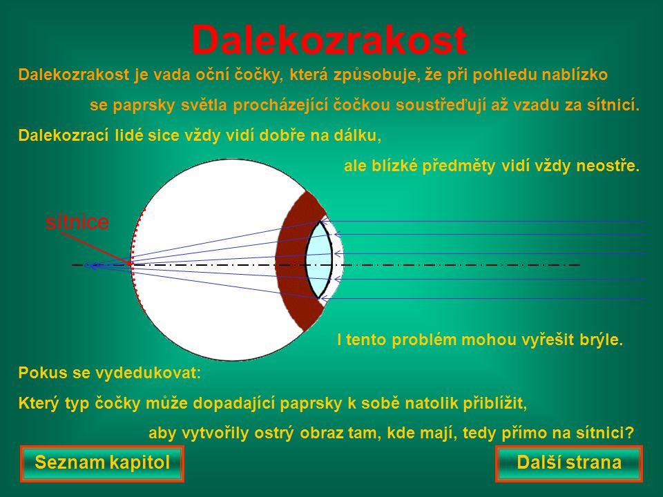Dalekozrakost je vada oční čočky, která způsobuje, že při pohledu nablízko se paprsky světla procházející čočkou soustřeďují až vzadu za sítnicí.