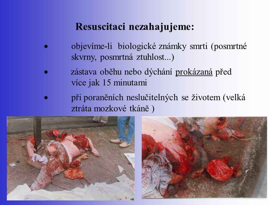 Resuscitaci nezahajujeme:  objevíme-li biologické známky smrti (posmrtné skvrny, posmrtná ztuhlost...)  zástava oběhu nebo dýchání prokázaná před ví