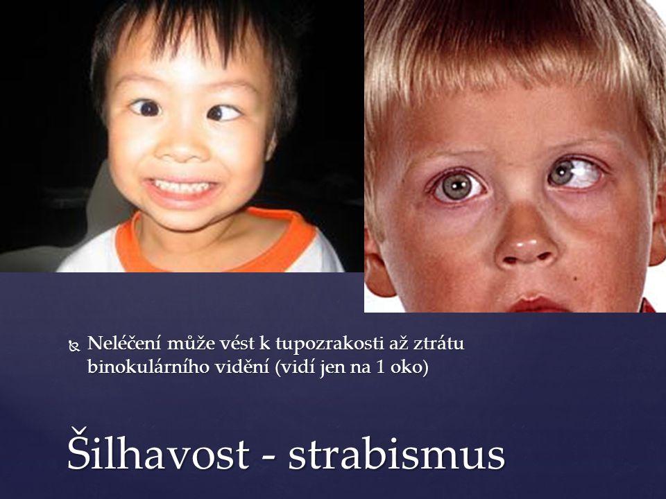  Neléčení může vést k tupozrakosti až ztrátu binokulárního vidění (vidí jen na 1 oko) Šilhavost - strabismus
