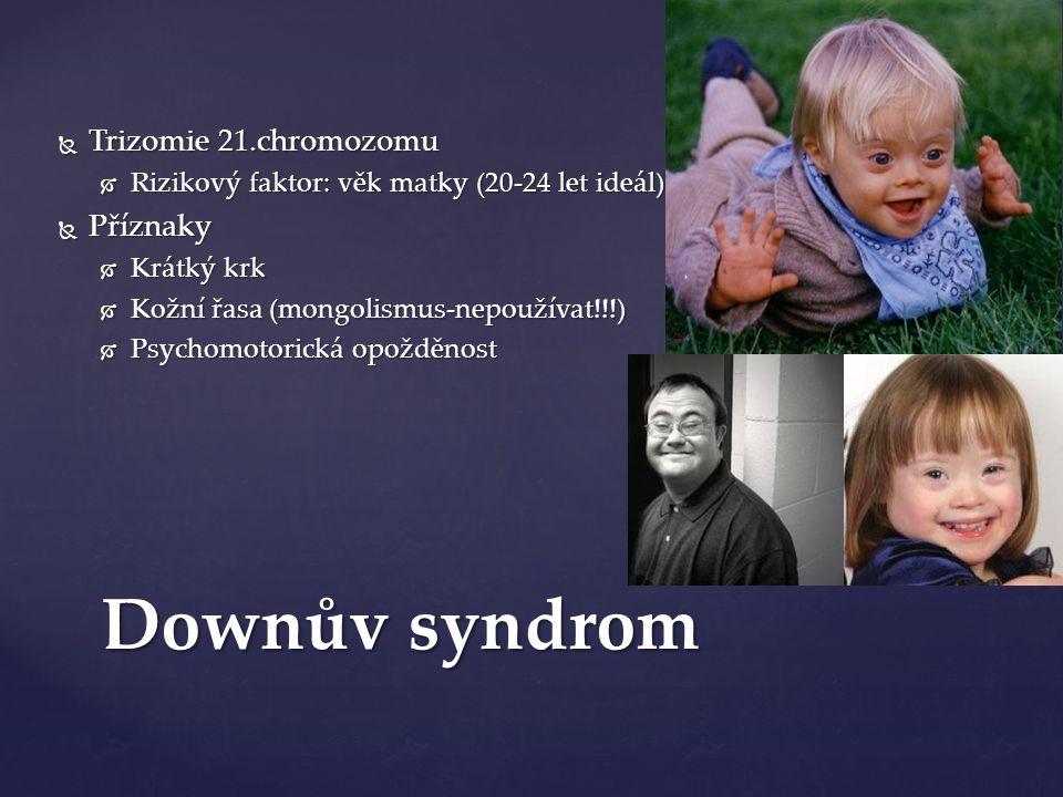 Downův syndrom  Trizomie 21.chromozomu  Rizikový faktor: věk matky (20-24 let ideál)  Příznaky  Krátký krk  Kožní řasa (mongolismus-nepoužívat!!!)  Psychomotorická opožděnost