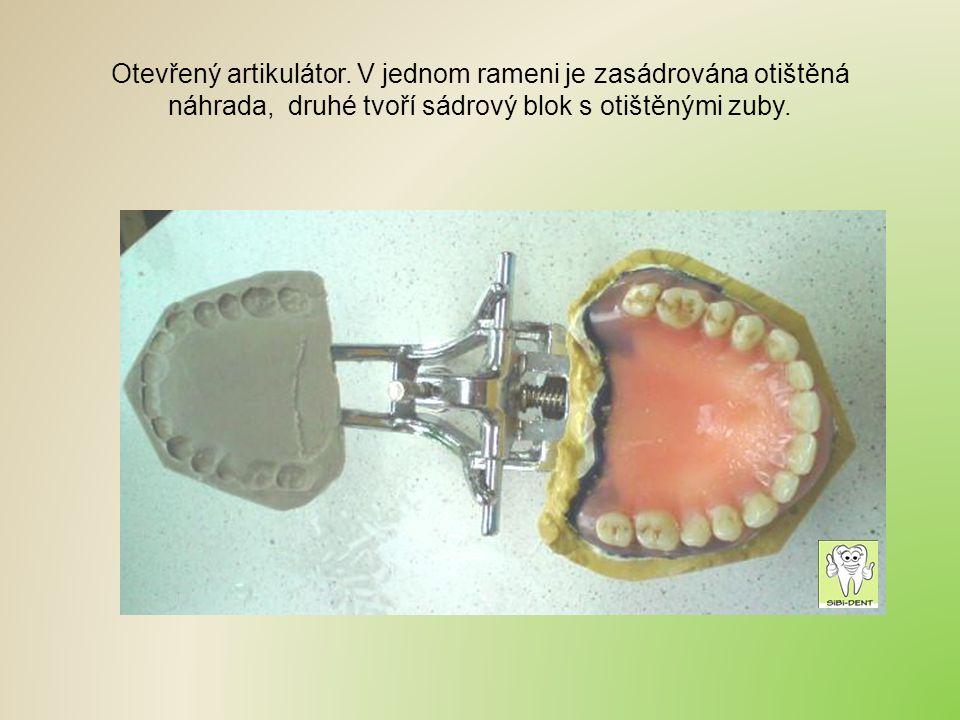 Otevřený artikulátor. V jednom rameni je zasádrována otištěná náhrada, druhé tvoří sádrový blok s otištěnými zuby.