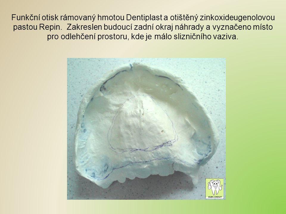 Funkční otisk rámovaný hmotou Dentiplast a otištěný zinkoxideugenolovou pastou Repin. Zakreslen budoucí zadní okraj náhrady a vyznačeno místo pro odle