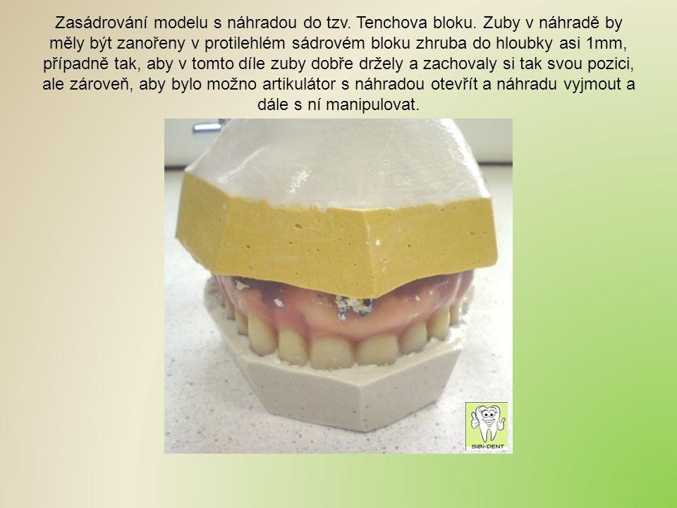 Zasádrování modelu s náhradou do tzv. Tenchova bloku. Zuby v náhradě by měly být zanořeny v protilehlém sádrovém bloku zhruba do hloubky asi 1mm, příp