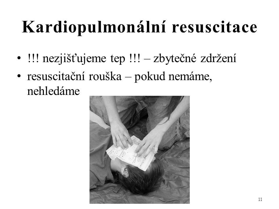 • !!! nezjišťujeme tep !!! – zbytečné zdržení • resuscitační rouška – pokud nemáme, nehledáme 11