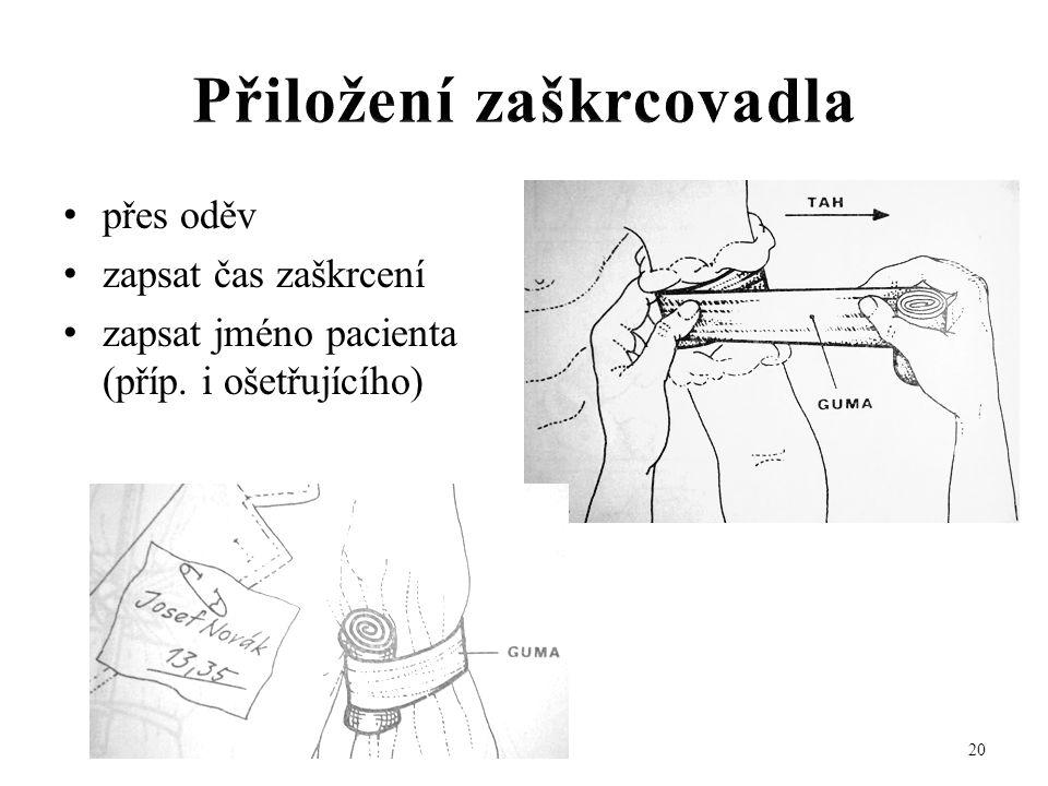 • přes oděv • zapsat čas zaškrcení • zapsat jméno pacienta (příp. i ošetřujícího) 20