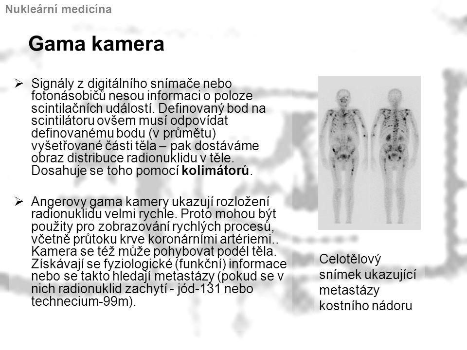 Gama kamera  Signály z digitálního snímače nebo fotonásobičů nesou informaci o poloze scintilačních událostí. Definovaný bod na scintilátoru ovšem mu