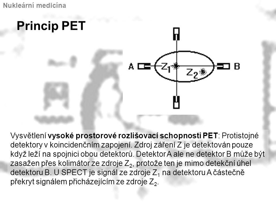 Princip PET Vysvětlení vysoké prostorové rozlišovací schopnosti PET: Protistojné detektory v koincidenčním zapojení. Zdroj záření Z je detektován pouz