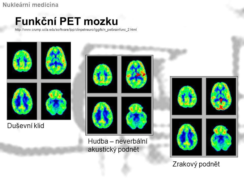 Funkční PET mozku http://www.crump.ucla.edu/software/lpp/clinpetneuro/lggifs/n_petbrainfunc_2.html Duševní klid Hudba – neverbální akustický podnět Zr