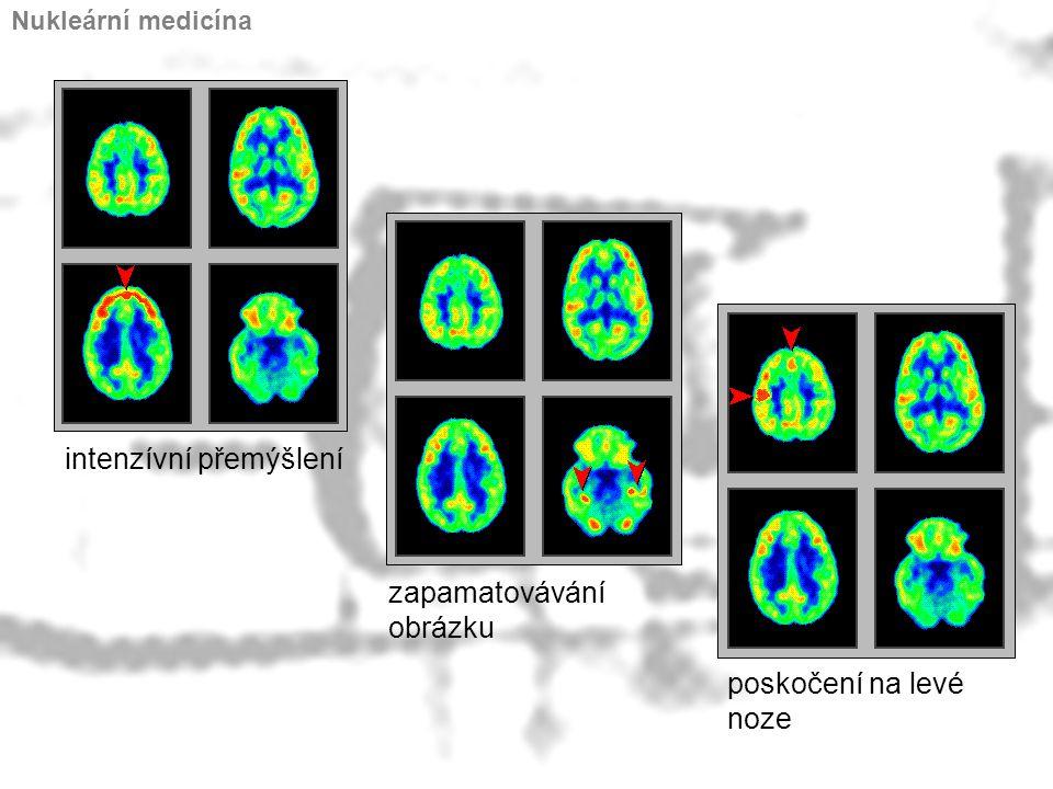 intenzívní přemýšlení zapamatovávání obrázku poskočení na levé noze Nukleární medicína