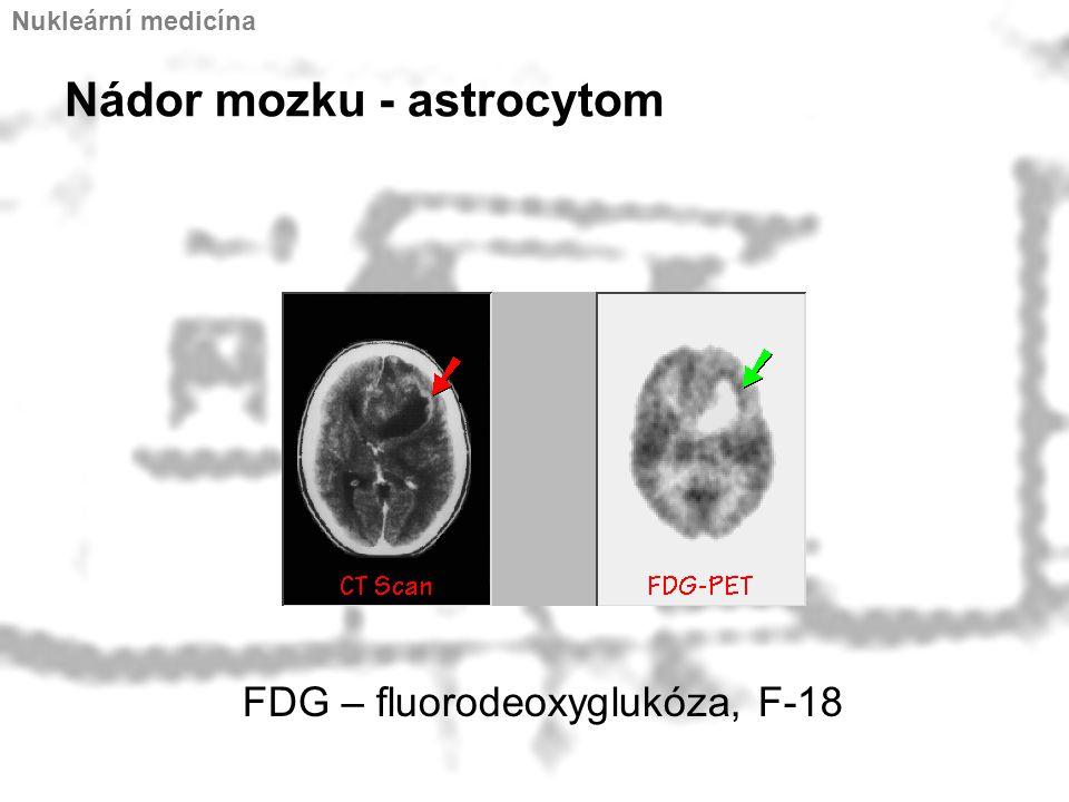 Nádor mozku - astrocytom Nukleární medicína FDG – fluorodeoxyglukóza, F-18