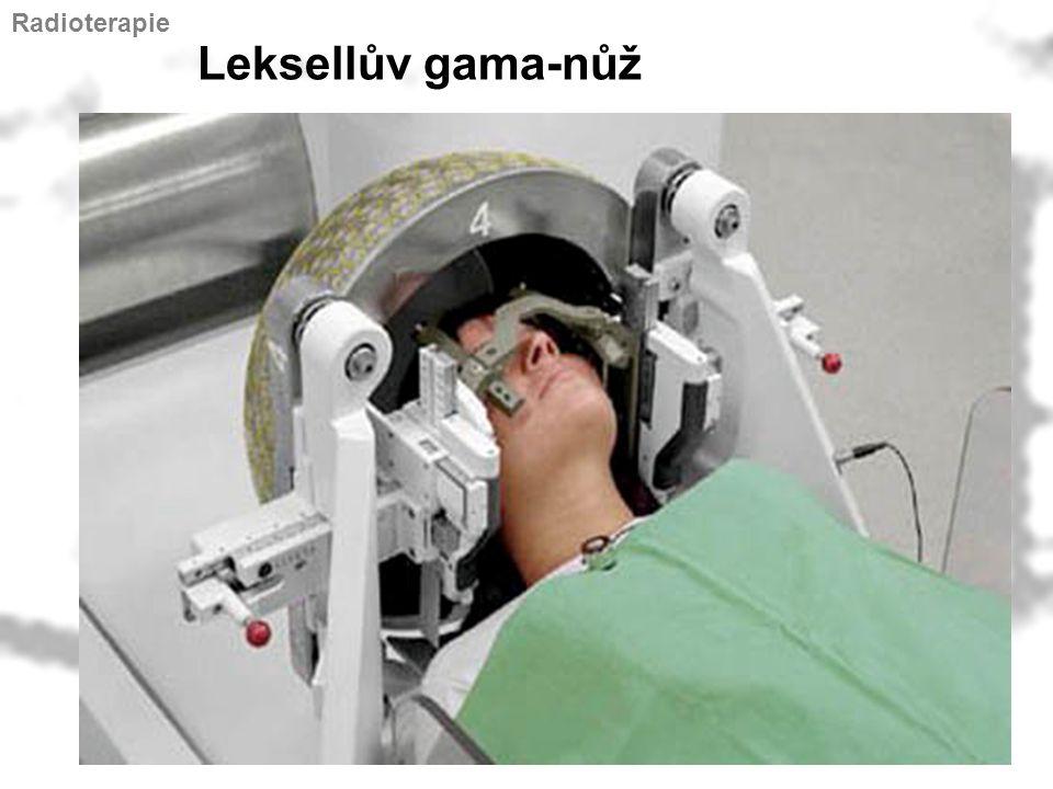 Leksellův gama-nůž Radioterapie