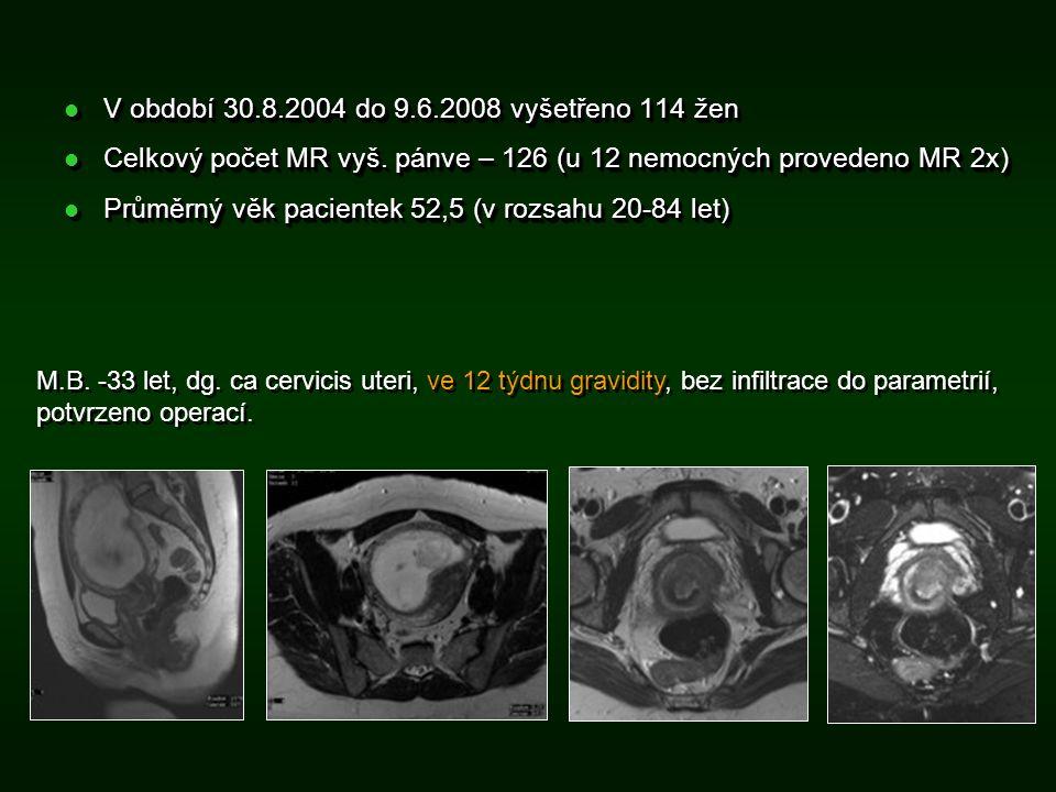 Shrnutí  V souboru dominují indikace MR vyšetření CA cervicis uteri – staging.