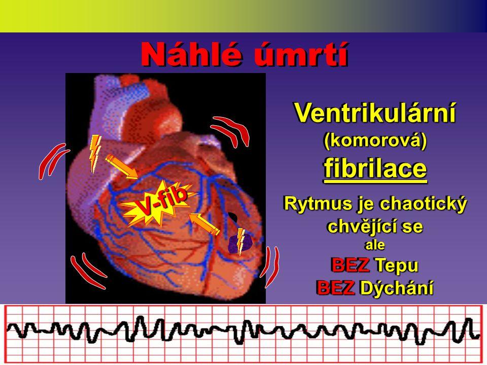 Varování a Příznaky ( Pacient jich má možná více…) Varování a Příznaky ( Pacient jich má možná více…) • Bolest v hrudníku / neklid • Vyzařování do ramene, krku a čelisti • Výrazné pocení • Obtížné dýchání • Bázlivý, zmatený, podrážděný • Popírání příznaků apod.