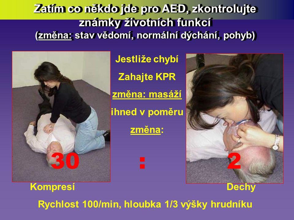 • Pošlete někoho pro AED… AED… • Pošlete někoho pro AED… AED… Jste-li sám, jděte vy osobně…!