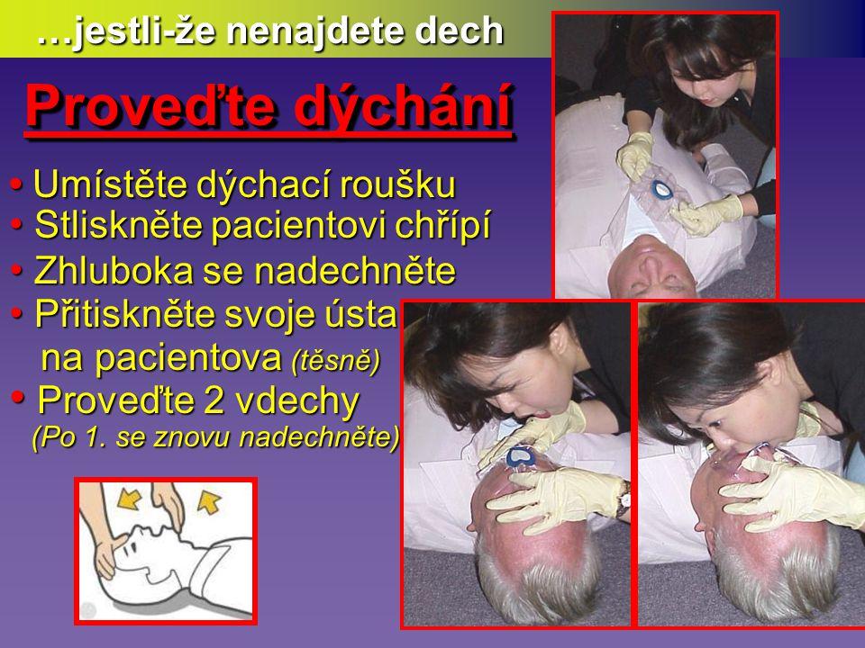 • Je v bezvědomí, nevnímá • Nereaguje na dotek • Nemá normální dýchání • Nemá žádný pohyb • Dotekem na krční tepně (provádí ti zkušenější) (provádí ti zkušenější) Potom (nově) zahajte úplnou KPR masáží laici v poměru masáží laici v poměru 30 : 2 30 : 2 až do obnovy plného dýchání až do obnovy plného dýchání Hledejte (nově) nepřímé Příznaky oběhu