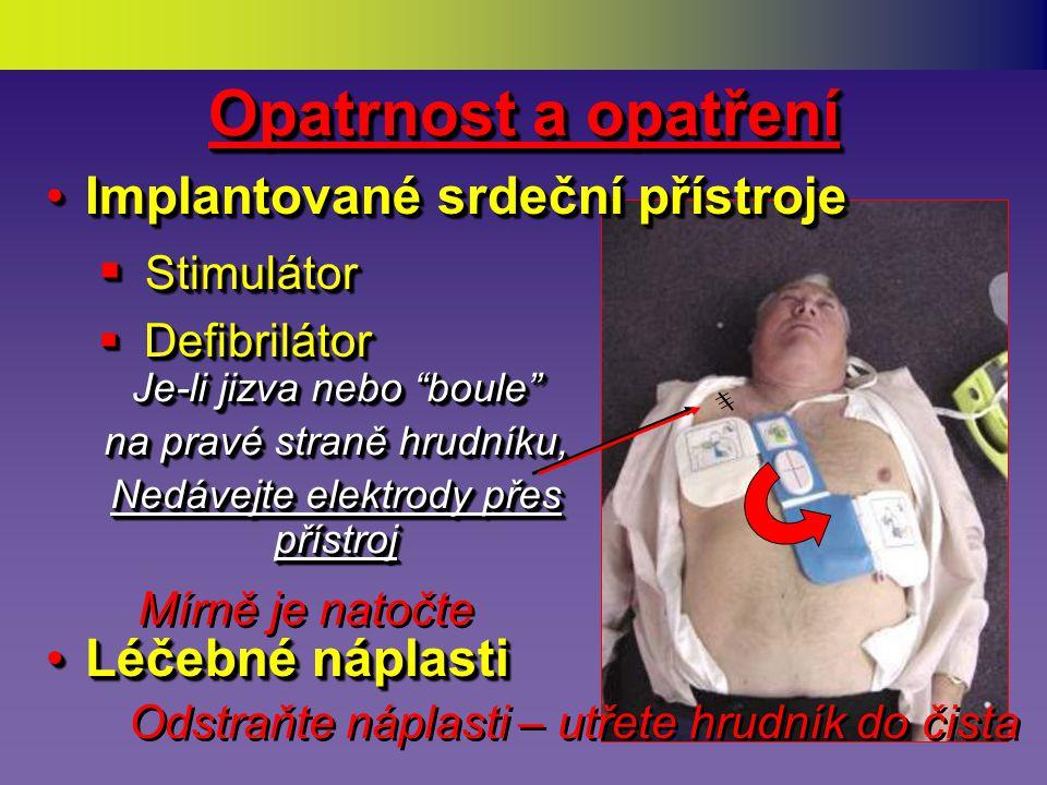 Vyhněte se umístění elektrod přímo přes Implantované přístroje pro podporu srdce Pacemaker R Opatrnost a opatření