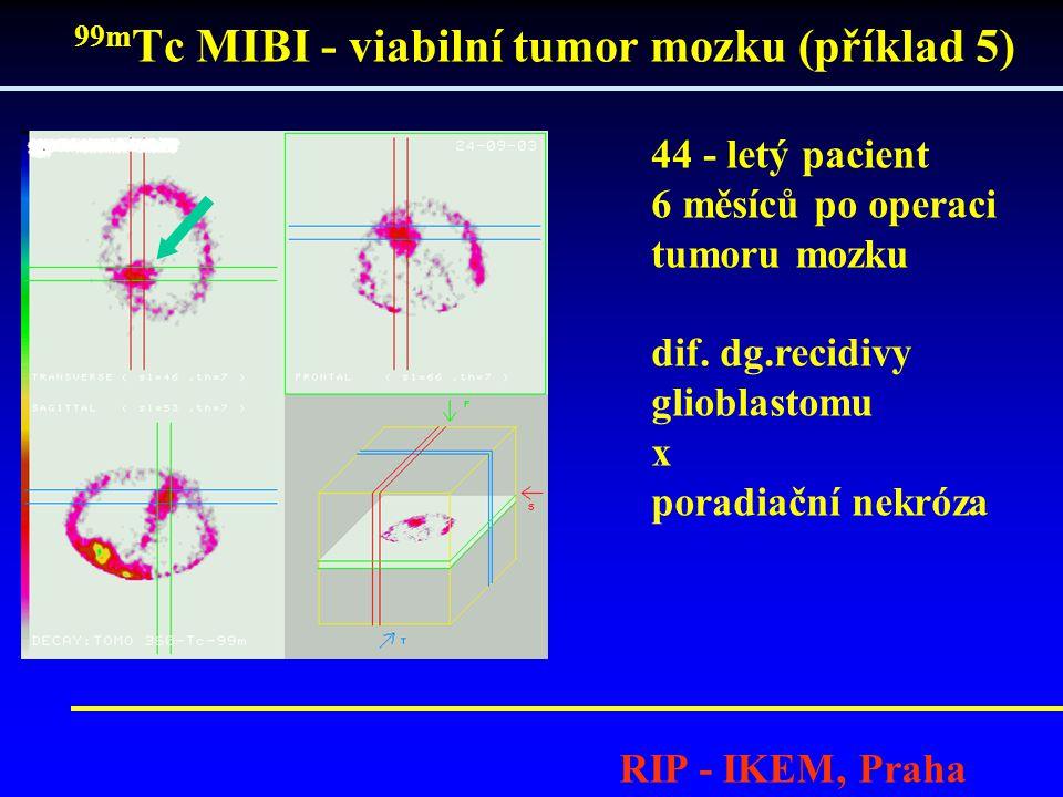 99m Tc MIBI - viabilní tumor mozku (příklad 5) RIP - IKEM, Praha 44 - letý pacient 6 měsíců po operaci tumoru mozku dif. dg.recidivy glioblastomu x po