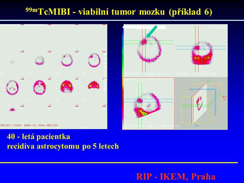 99m TcMIBI - viabilní tumor mozku (příklad 6) RIP - IKEM, Praha 40 - letá pacientka recidiva astrocytomu po 5 letech