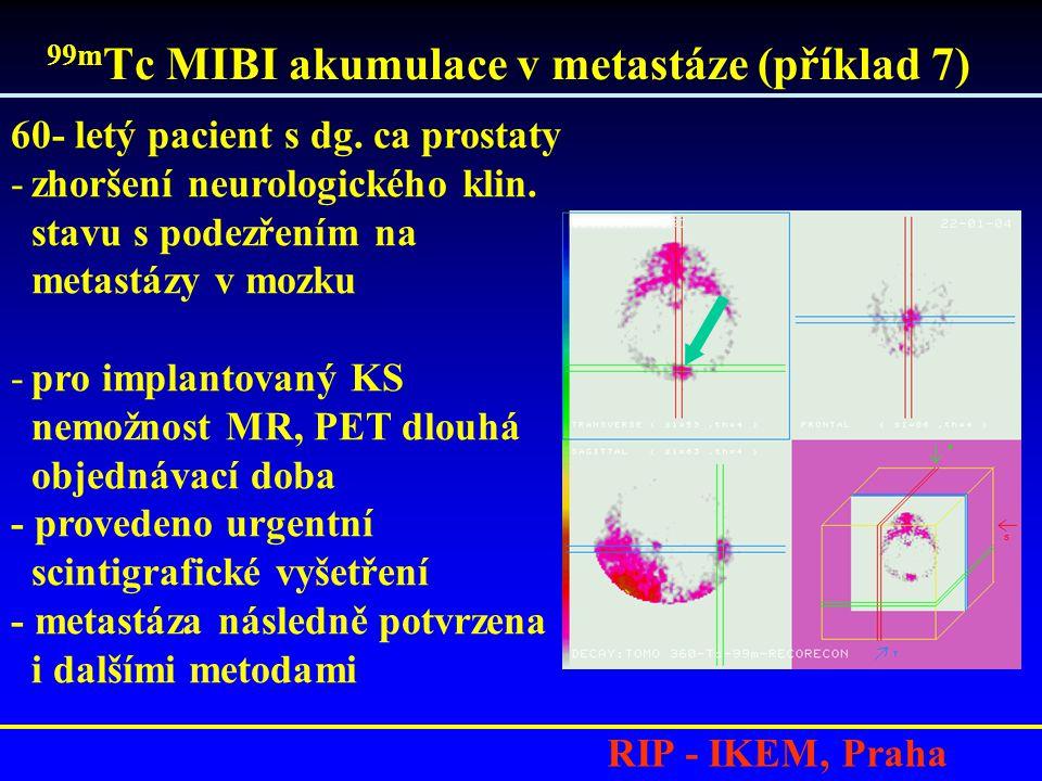 99m Tc MIBI akumulace v metastáze (příklad 7) RIP - IKEM, Praha 60- letý pacient s dg. ca prostaty -zhoršení neurologického klin. stavu s podezřením n