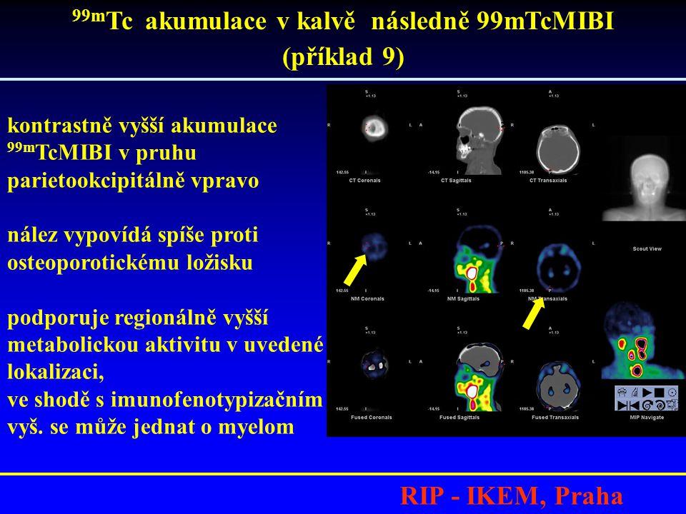 RIP - IKEM, Praha 99m Tc akumulace v kalvě následně 99mTcMIBI (příklad 9) kontrastně vyšší akumulace 99m TcMIBI v pruhu parietookcipitálně vpravo nález vypovídá spíše proti osteoporotickému ložisku podporuje regionálně vyšší metabolickou aktivitu v uvedené lokalizaci, ve shodě s imunofenotypizačním vyš.