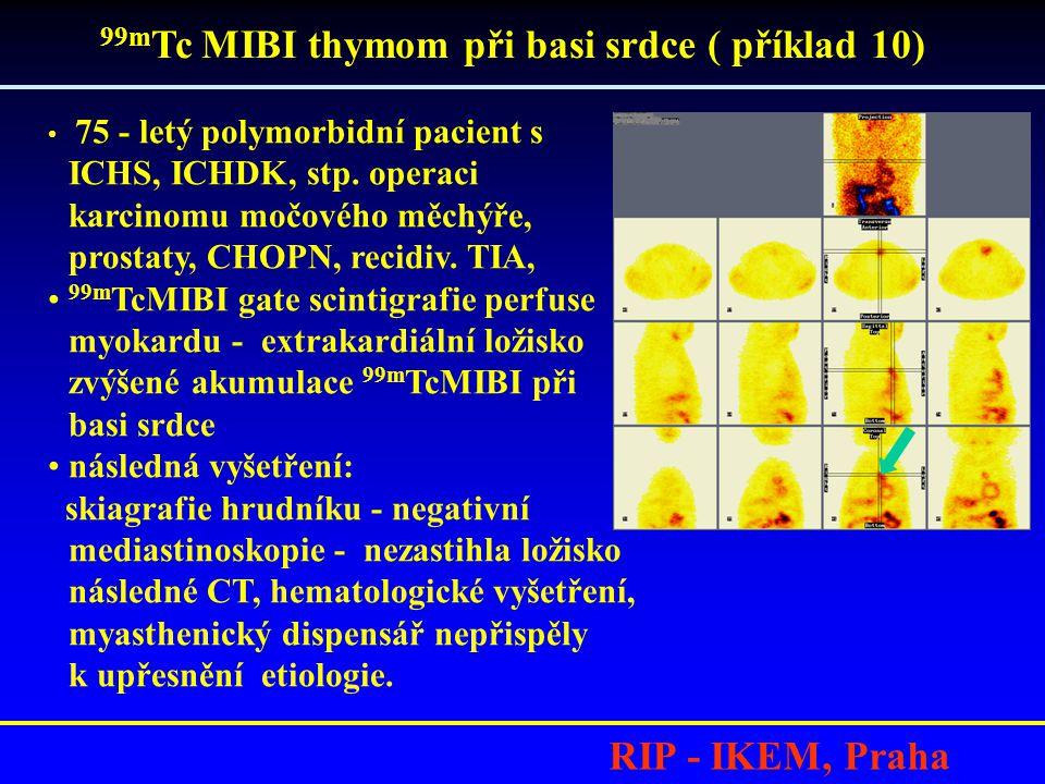 RIP - IKEM, Praha • 75 - letý polymorbidní pacient s ICHS, ICHDK, stp. operaci karcinomu močového měchýře, prostaty, CHOPN, recidiv. TIA, • 99m TcMIBI