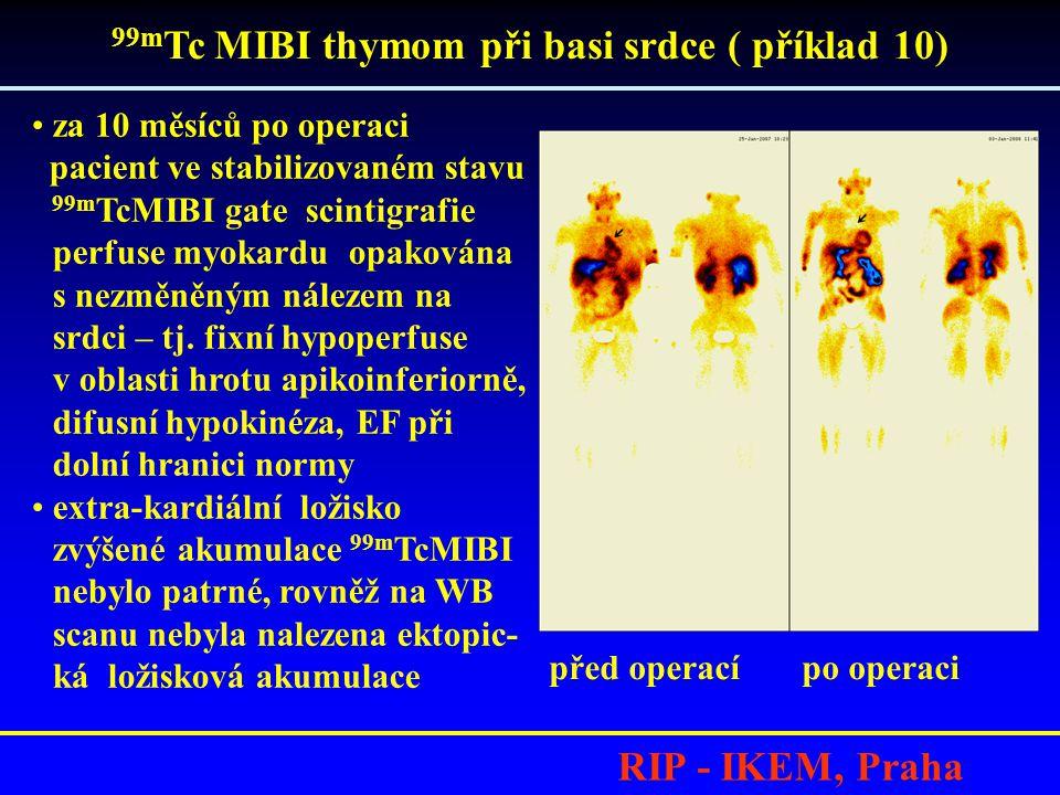 RIP - IKEM, Praha •za 10 měsíců po operaci pacient ve stabilizovaném stavu 99m TcMIBI gate scintigrafie perfuse myokardu opakována s nezměněným náleze