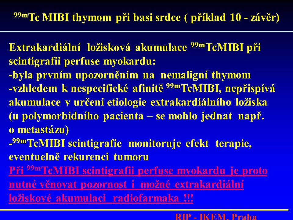 RIP - IKEM, Praha Extrakardiální ložisková akumulace 99m TcMIBI při scintigrafii perfuse myokardu: -byla prvním upozorněním na nemaligní thymom -vzhledem k nespecifické afinitě 99m TcMIBI, nepřispívá akumulace v určení etiologie extrakardiálního ložiska (u polymorbidního pacienta – se mohlo jednat např.