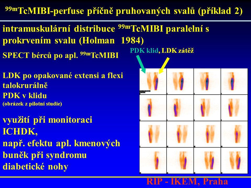 RIP - IKEM, Praha intramuskulární distribuce 99m TcMIBI paralelní s prokrvením svalu (Holman 1984) 99m TcMIBI-perfuse příčně pruhovaných svalů (příklad 2) SPECT bérců po apl.