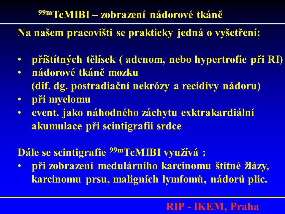 RIP - IKEM, Praha 99m TcMIBI – zobrazení nádorové tkáně Na našem pracovišti se prakticky jedná o vyšetření: •příštítných tělísek ( adenom, nebo hypertrofie při RI) •nádorové tkáně mozku (dif.