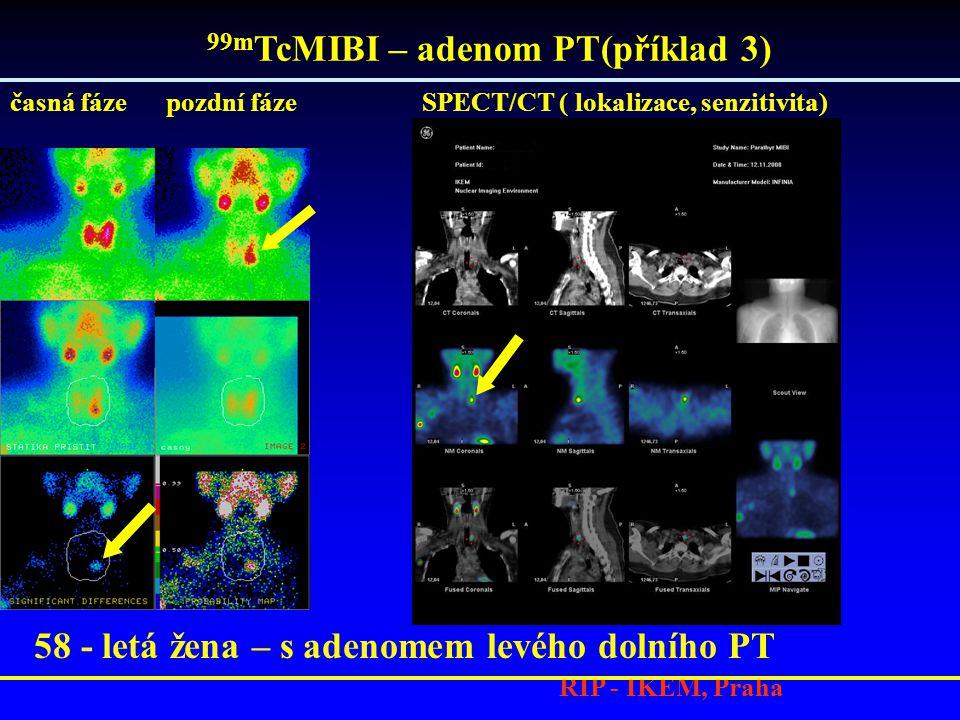 RIP - IKEM, Praha 58 - letá žena – s adenomem levého dolního PT 99m TcMIBI – adenom PT(příklad 3) časná fáze pozdní fáze SPECT/CT ( lokalizace, senzitivita)