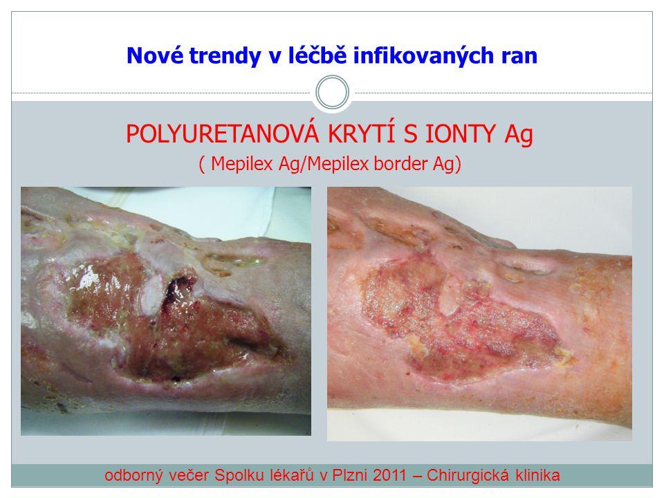 Nové trendy v léčbě infikovaných ran POLYURETANOVÁ KRYTÍ S IONTY Ag ( Mepilex Ag/Mepilex border Ag) odborný večer Spolku lékařů v Plzni 2011 – Chirurg