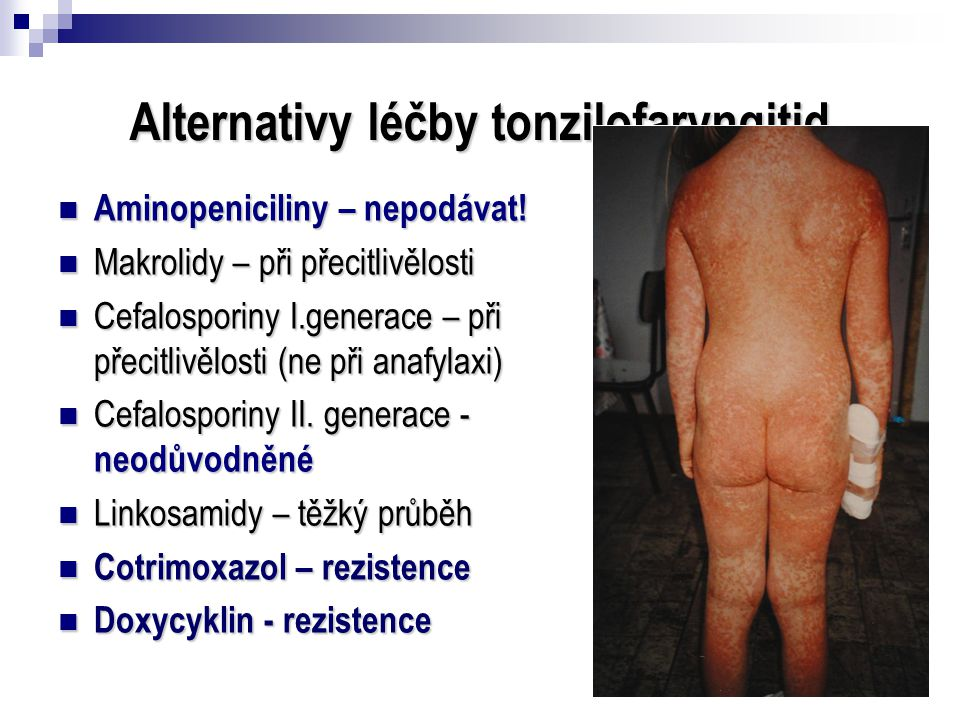 Alternativy léčby tonzilofaryngitid  Aminopeniciliny – nepodávat!  Makrolidy – při přecitlivělosti  Cefalosporiny I.generace – při přecitlivělosti