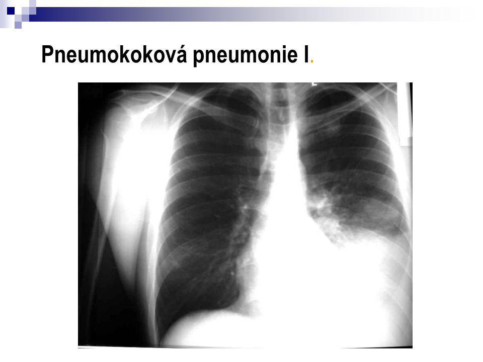 Pneumokoková pneumonie I.