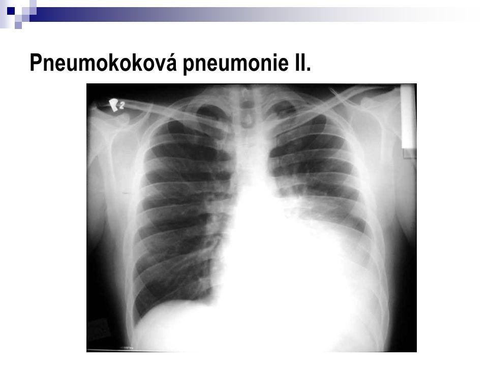 Pneumokoková pneumonie II.