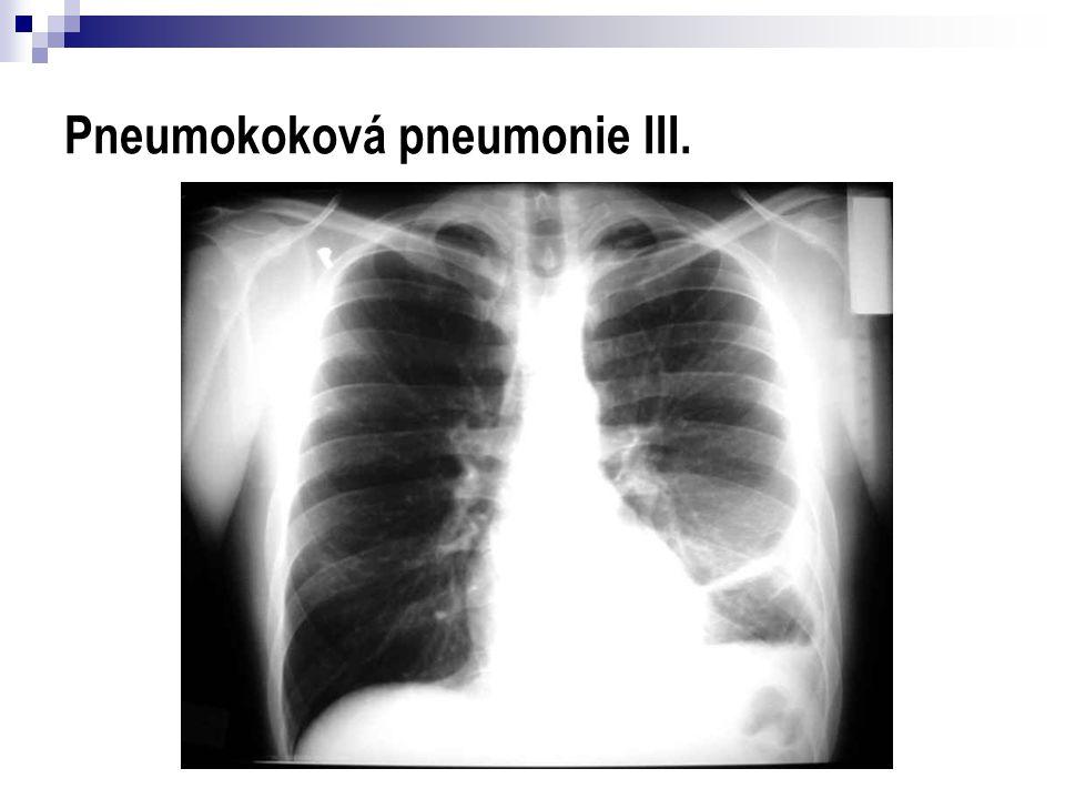 Pneumokoková pneumonie III.