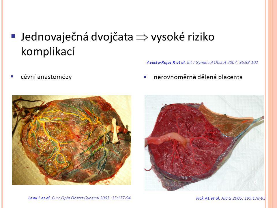  Jednovaječná dvojčata  vysoké riziko komplikací Acosta-Rojas R et al. Int J Gynaecol Obstet 2007  96:98-102  cévní anastomózy Lewi L et al. Curr