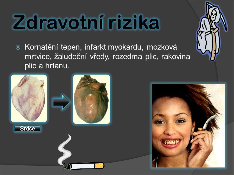  Kornatění tepen, infarkt myokardu, mozková mrtvice, žaludeční vředy, rozedma plic, rakovina plic a hrtanu. Srdce