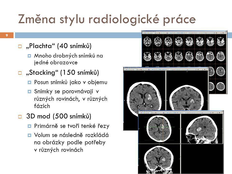 """Změna stylu radiologické práce 9  """"Plachta"""" (40 snímků)  Mnoho drobných snímků na jedné obrazovce  """"Stacking"""" (150 snímků)  Posun snímků jako v ob"""