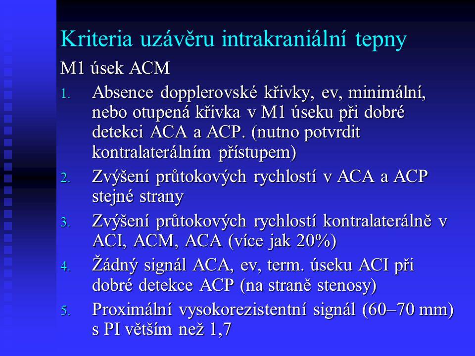 Kriteria uzávěru intrakraniální tepny M1 úsek ACM 1.