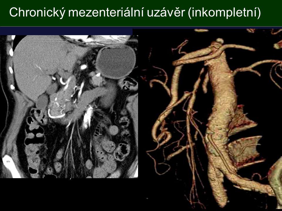 Chronický mezenteriální uzávěr (inkompletní) Stenóza, uzávěr (2 tepny) Trombóza Ak.