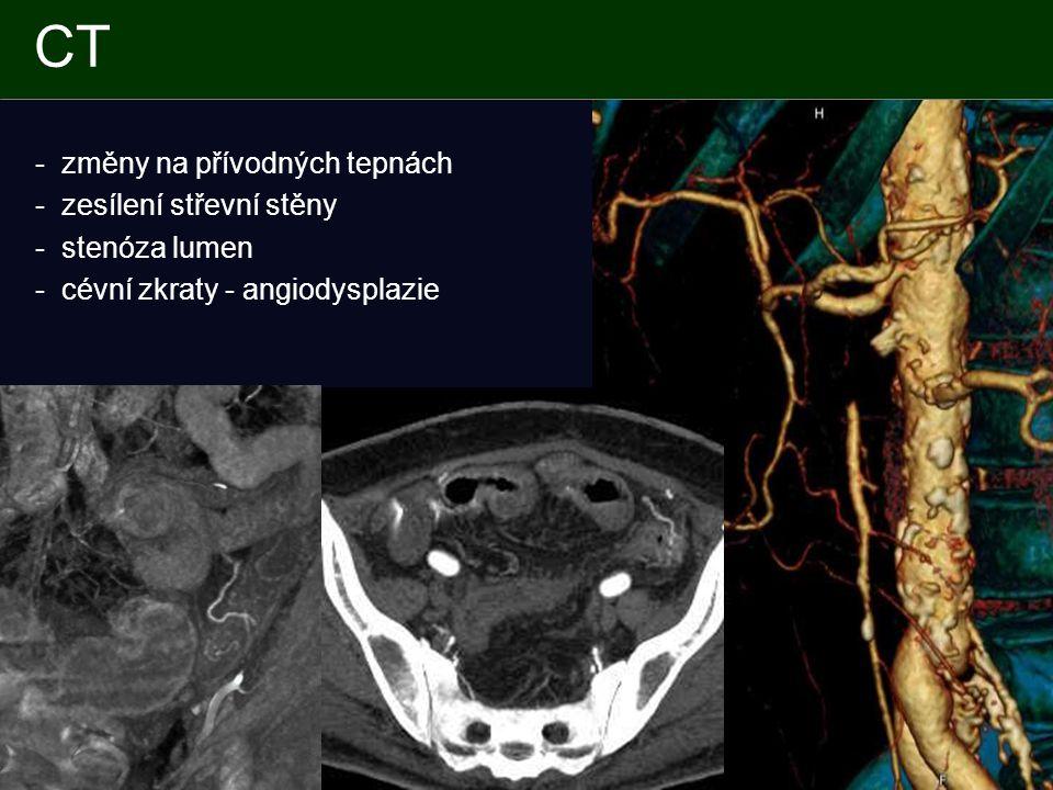 CT - změny na přívodných tepnách - zesílení střevní stěny - stenóza lumen - cévní zkraty - angiodysplazie
