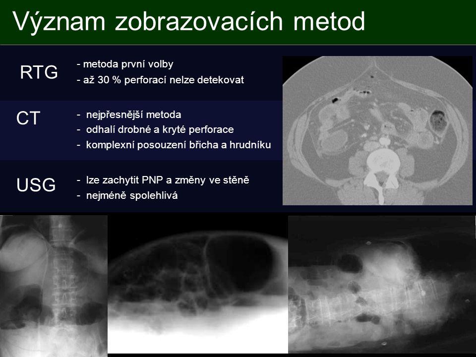 Význam zobrazovacích metod - metoda první volby - až 30 % perforací nelze detekovat - lze zachytit PNP a změny ve stěně - nejméně spolehlivá - nejpřesnější metoda - odhalí drobné a kryté perforace - komplexní posouzení břicha a hrudníku RTG USG CT