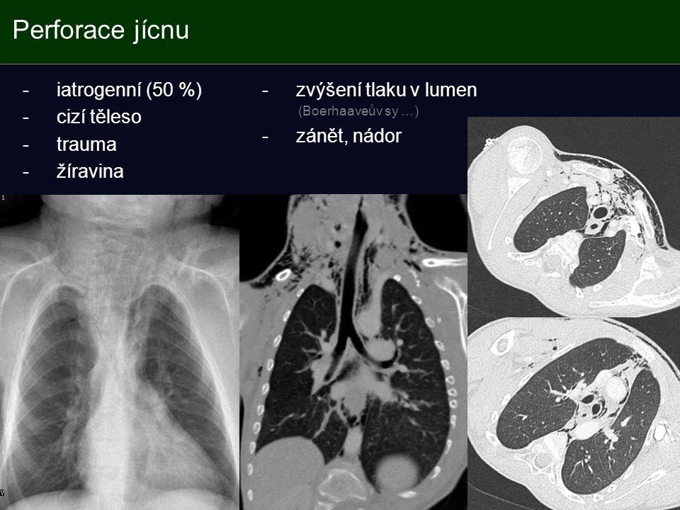 Perforace jícnu -iatrogenní (50 %) -cizí těleso -trauma -žíravina -zvýšení tlaku v lumen (Boerhaaveův sy …) -zánět, nádor