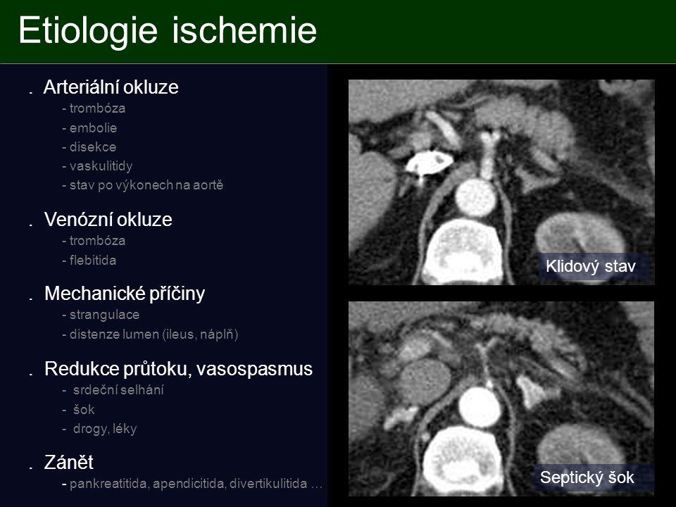 Etiologie ischemie.