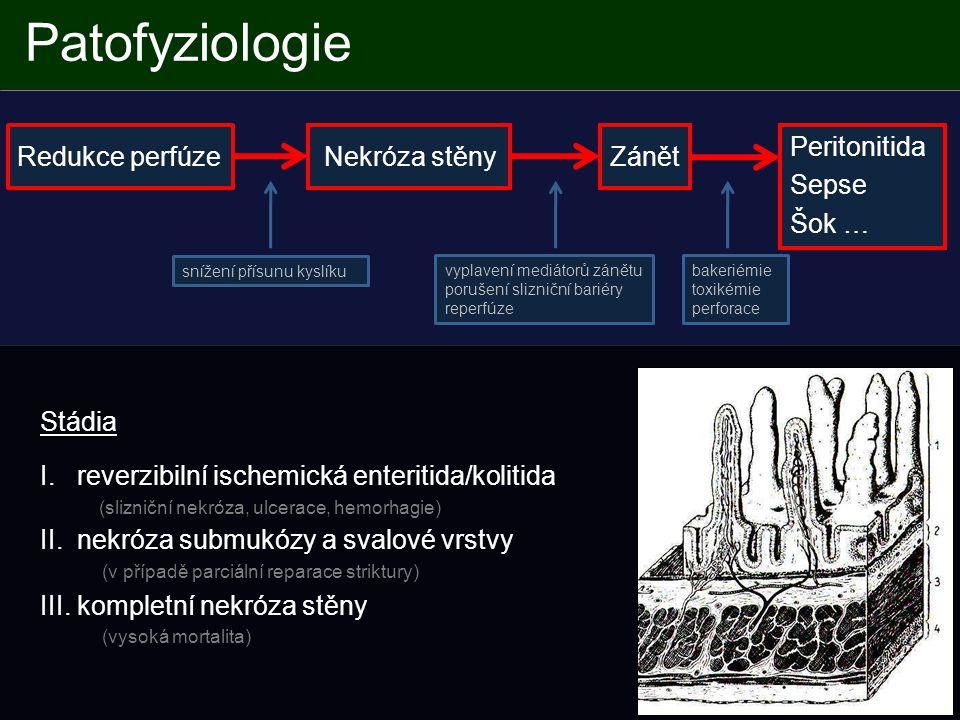 - trombóza žil (hlavní kmeny, arkády) - zesílení střevní stěny - pneumatóza - zamlžení mezenteria Trombóza portálního řečiště Trombofilní stav, tromboza žil střevních arkád