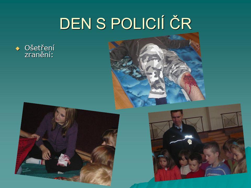 DEN S POLICIÍ ČR  Ošetření zranění: