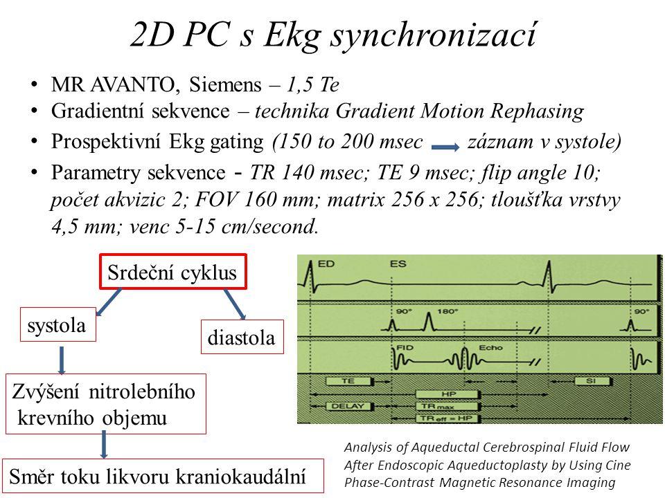 2D PC s Ekg synchronizací • MR AVANTO, Siemens – 1,5 Te • Gradientní sekvence – technika Gradient Motion Rephasing • Prospektivní Ekg gating (150 to 2