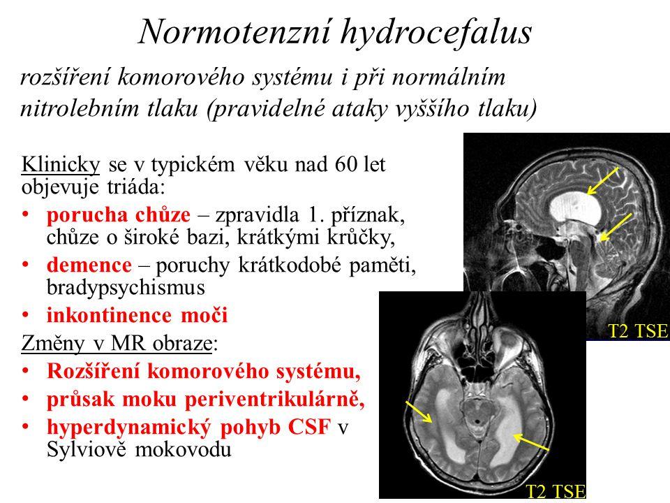 Tokové parametry v mokovodu Cine phase-contrast MRI evaluation of normal aqueductal cerebrospinal fluid flow according to sex and age Özkan Ünal, Alp Kartum, Serhat Avcu, Ömer Etlik, Halil Arslan, Aydın Bora Peak velocity (cm/s)Aqueductal area (mm 2 ) 6-14years (n=15, 7F, 8M)7,89 _ 2,572,33 15-24years (n=9, 2F, 7M)4,70 _ 1,613,10 25-34years (n=12, 6F, 6M)5,50 _ 2,893,07 35-44 years (n=11, 4F, 7M)4,93 _ 1,832,76 ≥45years (n=13, 6F, 7M)5,85 _ 1,802,01 Total (n=60, 25F, 35M)5,95 _ 2,482,67 F, female M, male
