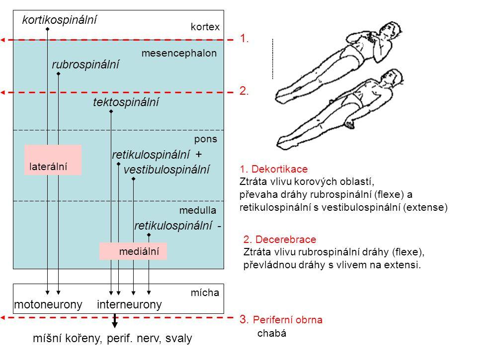 1. Dekortikace Ztráta vlivu korových oblastí, převaha dráhy rubrospinální (flexe) a retikulospinální s vestibulospinální (extense) 2. Decerebrace Ztrá